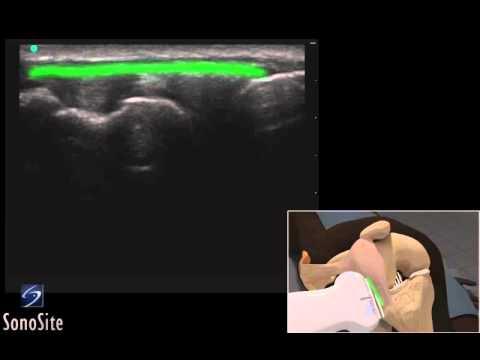 Guide 3D: Esame ecografico della benderella ileotibiale - Sistema a ultrasuoni SonoSite