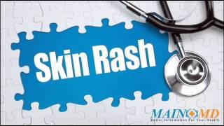 Skin Rash ¦ Treatment and Symptoms