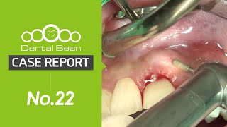 (ENG) Implant Gingival CLP and contouring