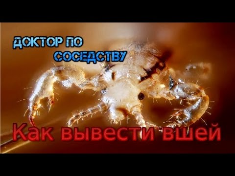 КАК ВЫВЕСТИ ВШЕЙ / HOW TO REMOVE THE LICE