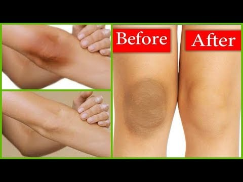 Lighten Dark Knees/ Elbows and Finger Joints with Lemon & Baking Soda in 1 Week / Rabia Skin Care