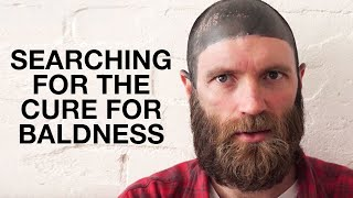 THE CURE FOR BALDNESS