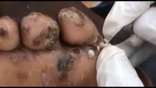 Emmanuel Jigger Digging