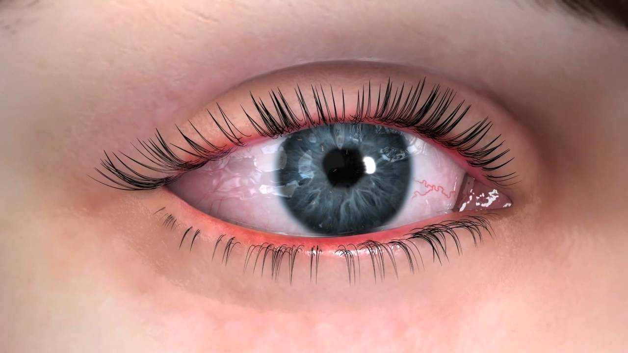 symptoms of dry eye