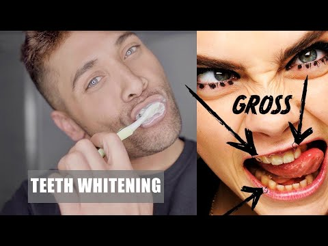 SERIOUSLY The Best Teeth Whitening Product (That Works!) | Never Have Gross Yellow Teeth Again