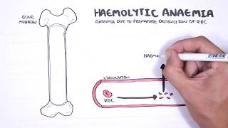 Mengenal Anemia Hemolitik Penyebab Serta Penanganannya.