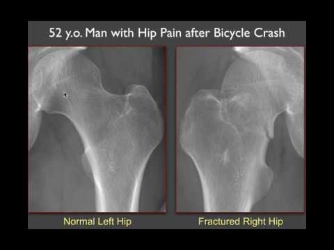 Imaging of the Hip: More Radiographic Essentials!