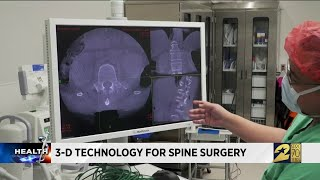 3D Technology for spine surgery