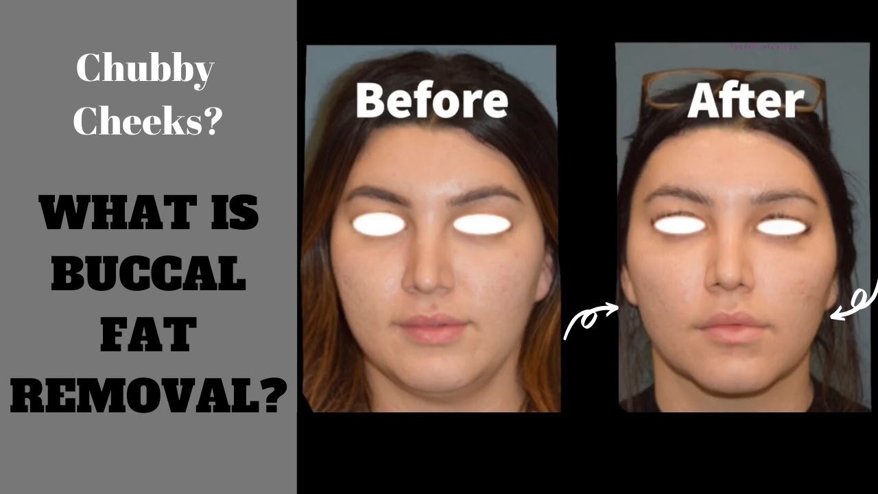 Buccal Fat Removal - Bevlery Hills - Cheek Reduction - $1999