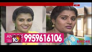 Health Time | Anoo's Salons & Clinic | Anoos Director Anuradha Suggestions | 10TV