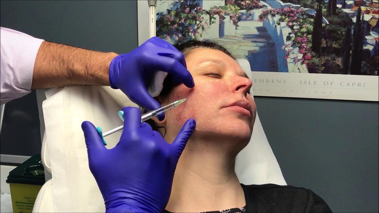 Dr  Nino Kuzmar Injects Juvederm Volite SKIN BOOSTER