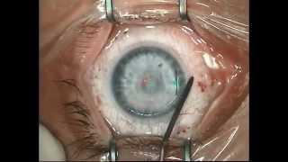 Запись операции лазерной коррекции зрения(Видео операции лазерной коррекции зрения. Подробнее на сайте: http://proglaza.ru/lechenie-glaz/operacii-na-glaza/lazernaya-correktia-zriniya-lasi..., 2015-07-21T12:50:10.000Z)