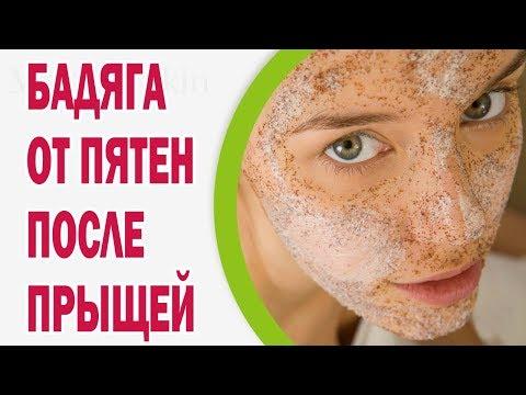 Дерматотропные средства МосФарма Циндол - отзывы