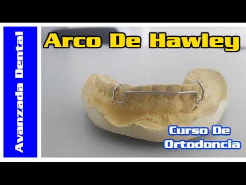 Curso De Ortodoncia: Arco Vestibular/Hawley (1/5)
