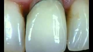 Протезирование для зубов.(Протезирование используют в стоматологии для решения проблем с восстановлением зубов. Часто, такой способ..., 2016-03-22T14:53:23.000Z)