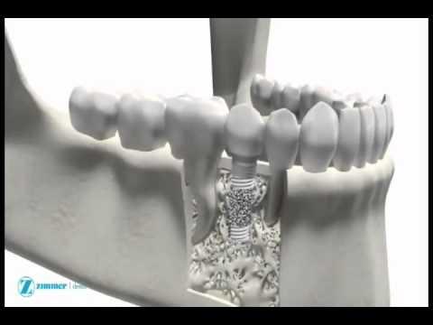 Зубной имплантат — Википедия