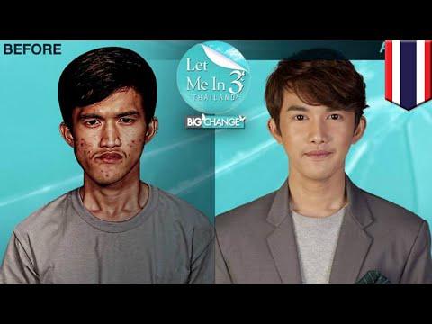 韓国で整形手術を受けたタイ人男性 母親も息子と気づかず - トモニュース