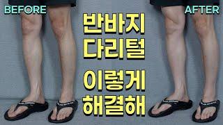 [여름패션꿀팁] 반바지 입기 전 필수!! 왁싱X 제모X…