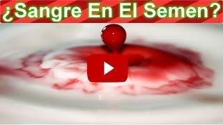 Como Curar La Sangre En El Semen Con Estos 2 Remedios Naturales | Hematospermia