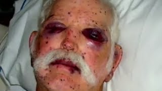 Repeat youtube video Attacked By 2000 Bees - Bizarre ER
