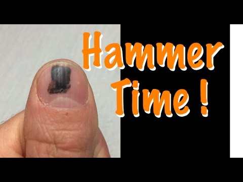 Smashed Nail With Hammer Time Lapse Black Spot Under Fingernail