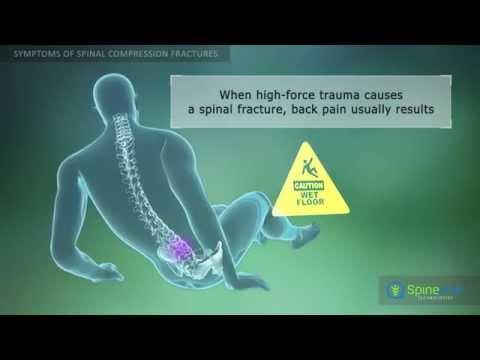 hqdefault - Back Pain Due To Compression Fracture