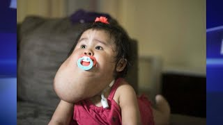 Baby Receives Life-Changing Surgery