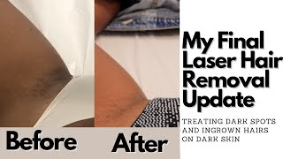 I hope y'all enjoyed this video and it was helpful ! please don't forget to check out semper laser https://www.instagram.com/semperlaser/|| social media ||in...