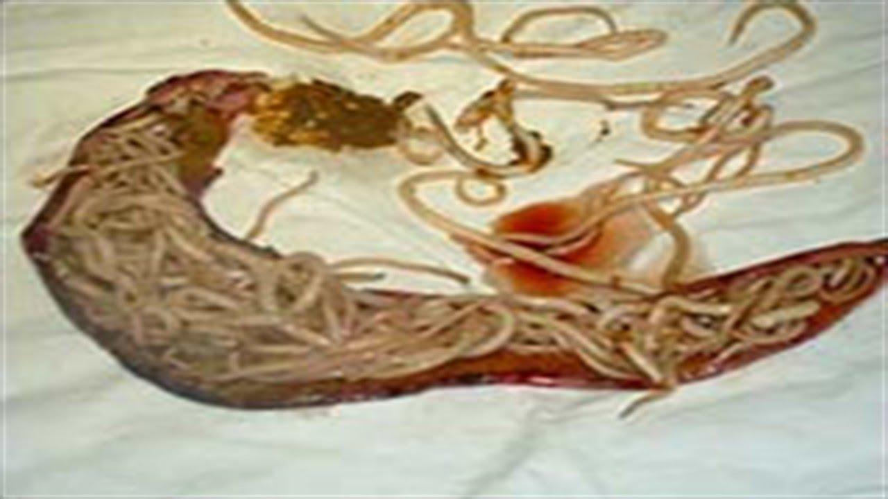 черви на теле человека видео