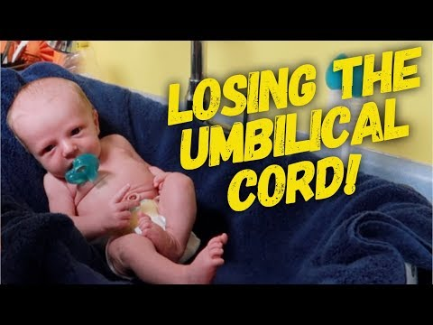 NEWBORN'S UMBILICAL CORD FELL OFF! (9 DAYS OLD!)