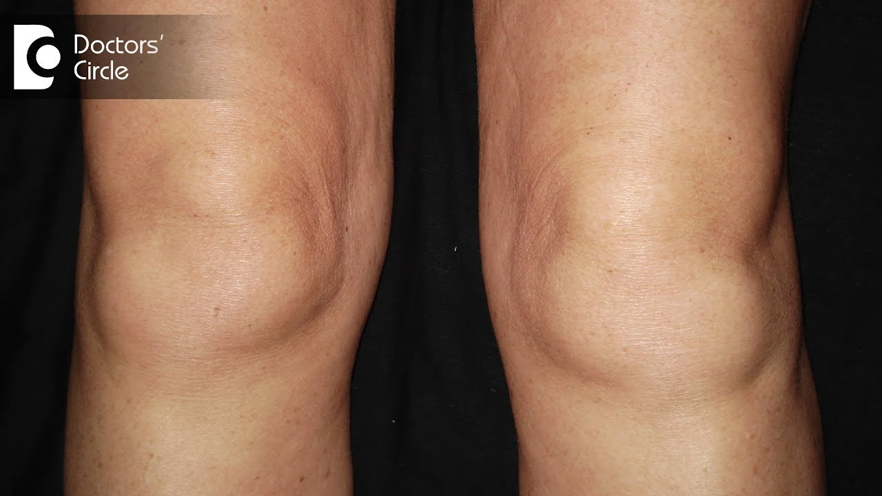 What are the causes of swelling in knees? Dr.Nagesh HS