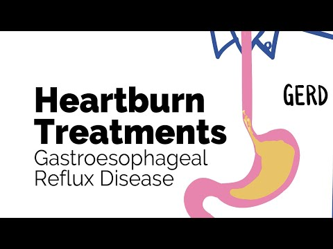 Treatments for Heartburn   Gastroesophageal Reflux Disease (GERD)   Gastrointestinal Society