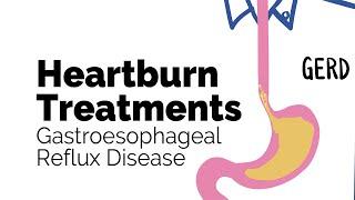 Treatments For Heartburn | Gastroesophageal Reflux Disease (gerd) | Gastrointestinal Society