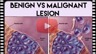 Medical Coding Basics | Benign vs Malignant Lesion