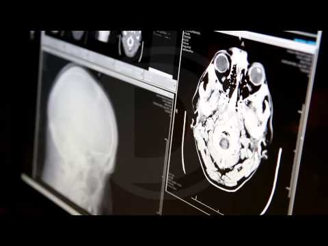 A Killer's Brain: Scans Look for Clues to Violence