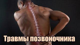 видео Травмы позвоночника