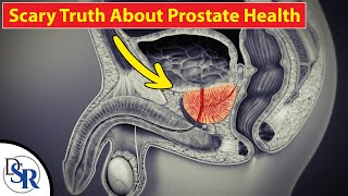 🤾‍♂️ The REAL Cause & Cure For Prostate Cancer