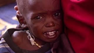 HAYATTA KAL SOMALİ BELGESELİ  - SURVİVE SOMALI DOCUMENTARY