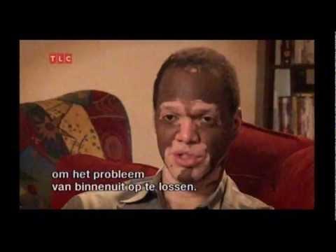 Vitiligo: A day in Lee Thomas' shoes
