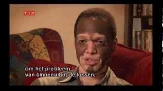 Vitiligo: A day in Lee Thomas
