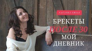видео брекеты киев