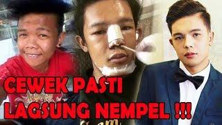 Pria Ini Jalani Operasi Plastik Perubahanya Malah Bikin Ibunya Nangis!!