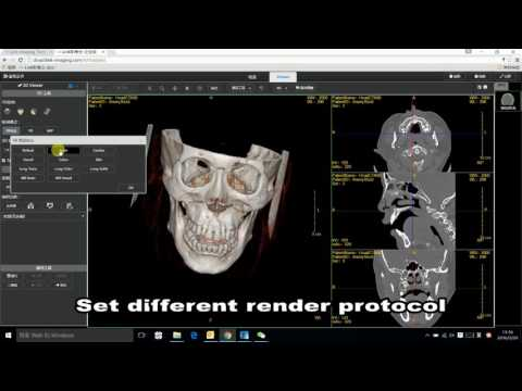 LinkCloud Web 3D Dicom viewer