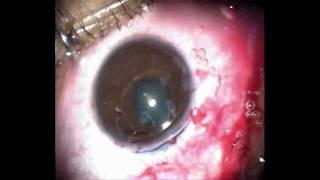 Verisyse Lens Phakic Intraocular Lens Procedure at NNJEI