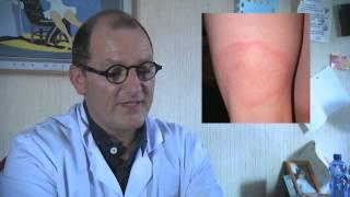 La Tique, le risque de maladie de Lyme: danger ! Que faire ?