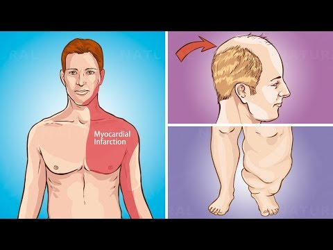 10 Surprising Heart Disease Warning Signs