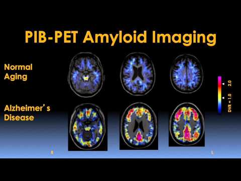Early Detection and Prevention of Alzheimer's Disease Video