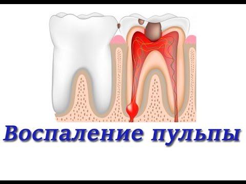 Лечение зубов. Воспаление пульпы. Методы лечения. Терапевтическая стоматология.