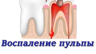 Лечение зубов. Воспаление пульпы. Методы лечения. Терапевтическая стоматология.(, 2015-06-01T12:51:02.000Z)
