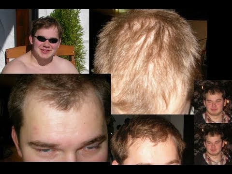 Hair Styling And Hair Loss Youtube